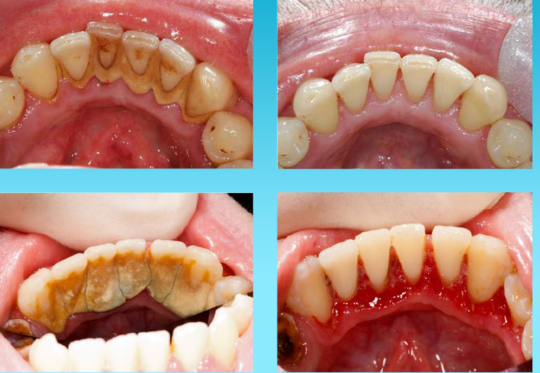 Full Mouth Prophylaxis Scaling Treatment in Trivandrum