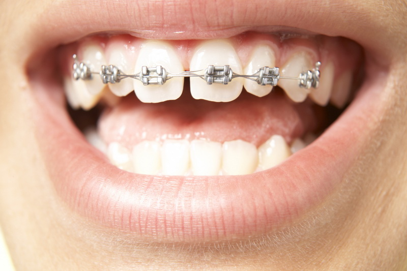 orthodontics trivandrum
