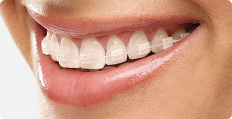 Self Ligating Clear Braces Damon Braces Trivandrum